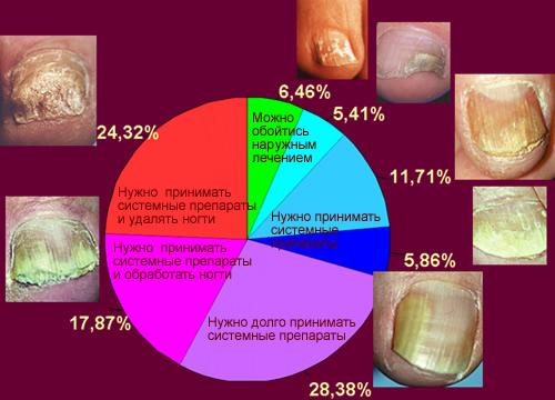 Стадии грибка и его лечение