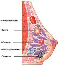 Виды заболеваний молочных желез.