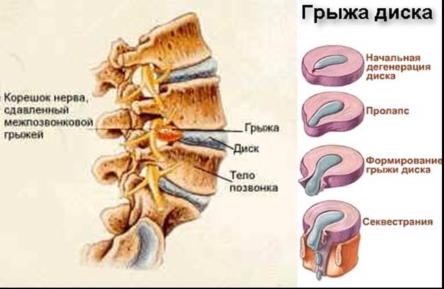 Болезнь позвоночника - грыжа
