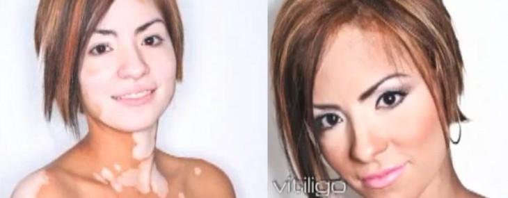 Витилиго – белые пятна на коже
