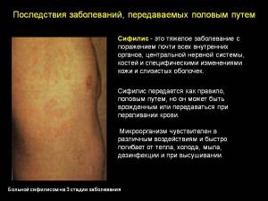 Венерическое заболевание - сифилис