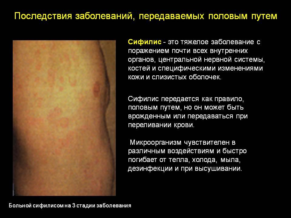 Сифилис фото